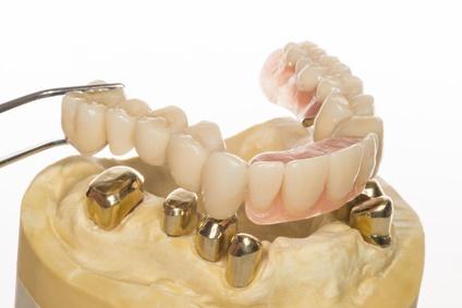 Zahnersatz Muss Immer Häufiger Finanziert Werden